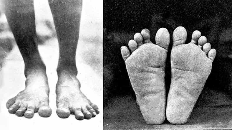 Foot Anatomy 101 1