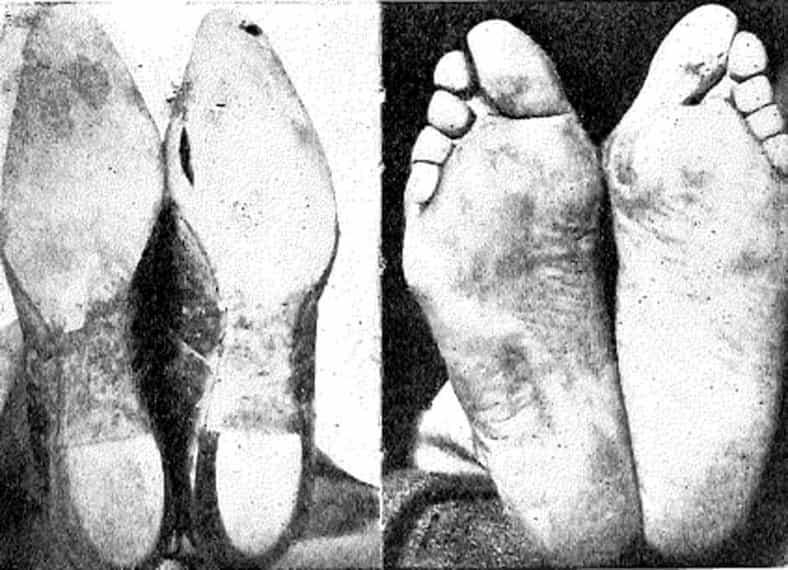 Foot Anatomy 101 3